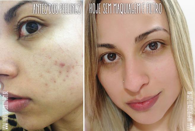 peeling antes e depois
